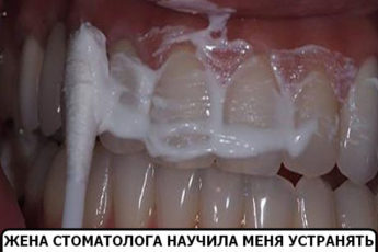 Жена стоматолога научила меня устранять зубной камень и отбеливать зубы за 4 минуты