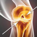 Вот как восстановить поврежденные хрящи бедра и коленей! Быстро и эффективно!